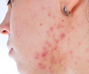 snel en doeltreffend vanje acne af