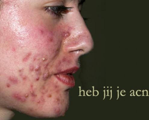 last van acne op het gezicht