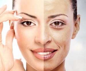 huid therapeutische diepte peelingen