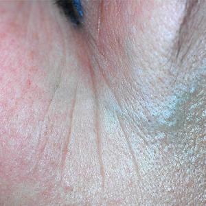 huidverjonging rose marie instituut voor totaal kosmetiek