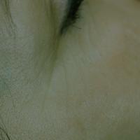 oog rechts 2 genxskin