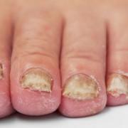 schimmel en kalk nagels behandelen