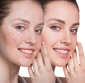 Acne oorzaak en behandeling